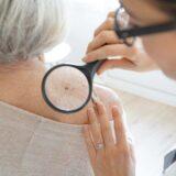 Kdaj k dermatologu na pregled znamenj?